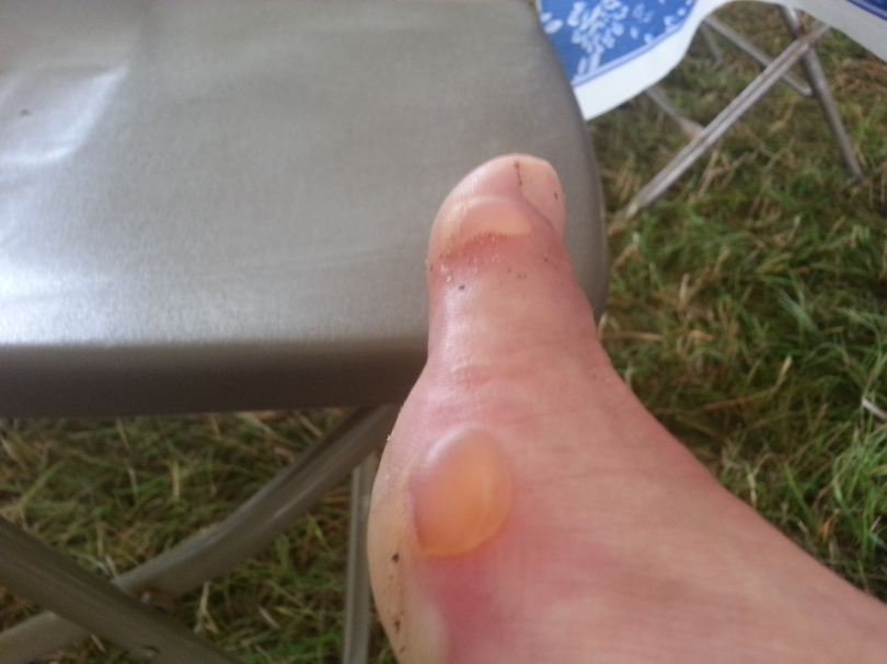 2 of my 6 blisters