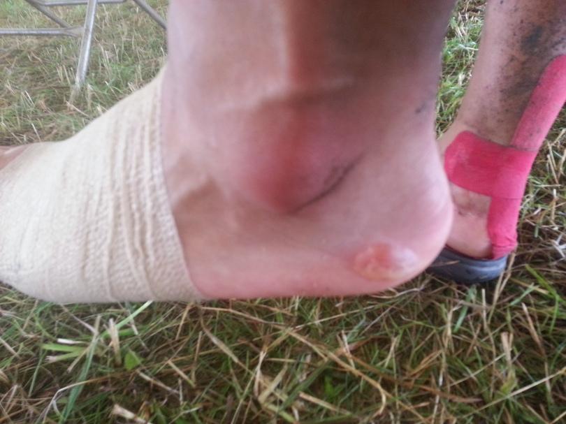 Blisters & Massively Swollen left foot